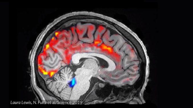 Спинномозговая жидкость промывает мозг